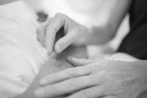 Popularne mity o akupunkturze