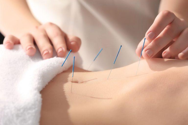 Akupunktura iłagodzenie bólu miesiączkowego