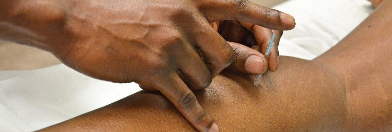 Stres - dlaczego warto zastosować Akupunkturę
